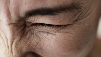 Close up picture of a person with eye shut tightly due to uncontrollable movements
